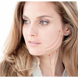 Hilos tensores para evitar flacidez de piel