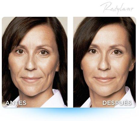 Tratamiento para arrugas con botox